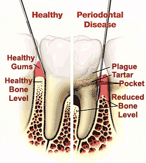 NonSurgicalPeriodontal