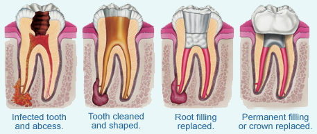 root_canal_therapy